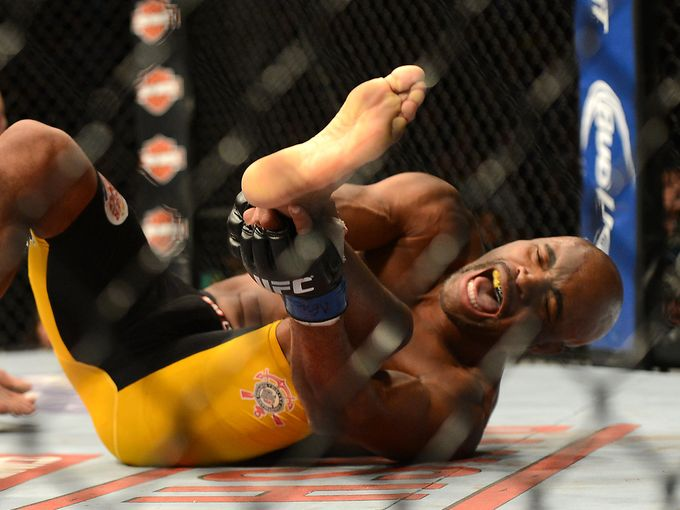 Video: Anderson Silva Snaps Leg In Latest Fight
